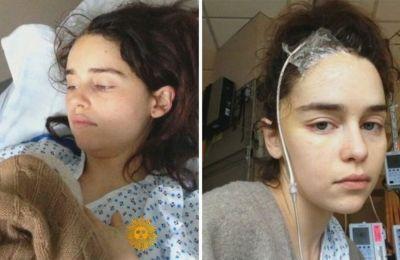 Η μεγάλη μάχη με τα ανευρύσματα  την οδήγησε τελικά στο χειρουργείο.