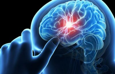 Oι γυναίκες με τα χαμηλότερα επίπεδα τριγλυκεριδίων (κάτω των 74 mg/dL) είχαν διπλάσια πιθανότητα εγκεφαλικού