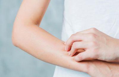 Η έρευνα αποσκοπεί στην κατανόηση της πρόκλησης αλλεργίας και της σωστής πρόληψης ή/και αντιμετώπισης όταν παρουσιαστεί.