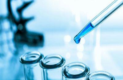 H εξέταση διενεργείται σύμφωνα με τις οδηγίες του Διεθνούς Οργανισμού Υγείας (WHO) με τη μοριακή μέθοδο RT-PCR.